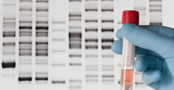 How DNA Testing Affects Our Lives