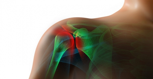 The Causes and Effects of Shoulder Impingement