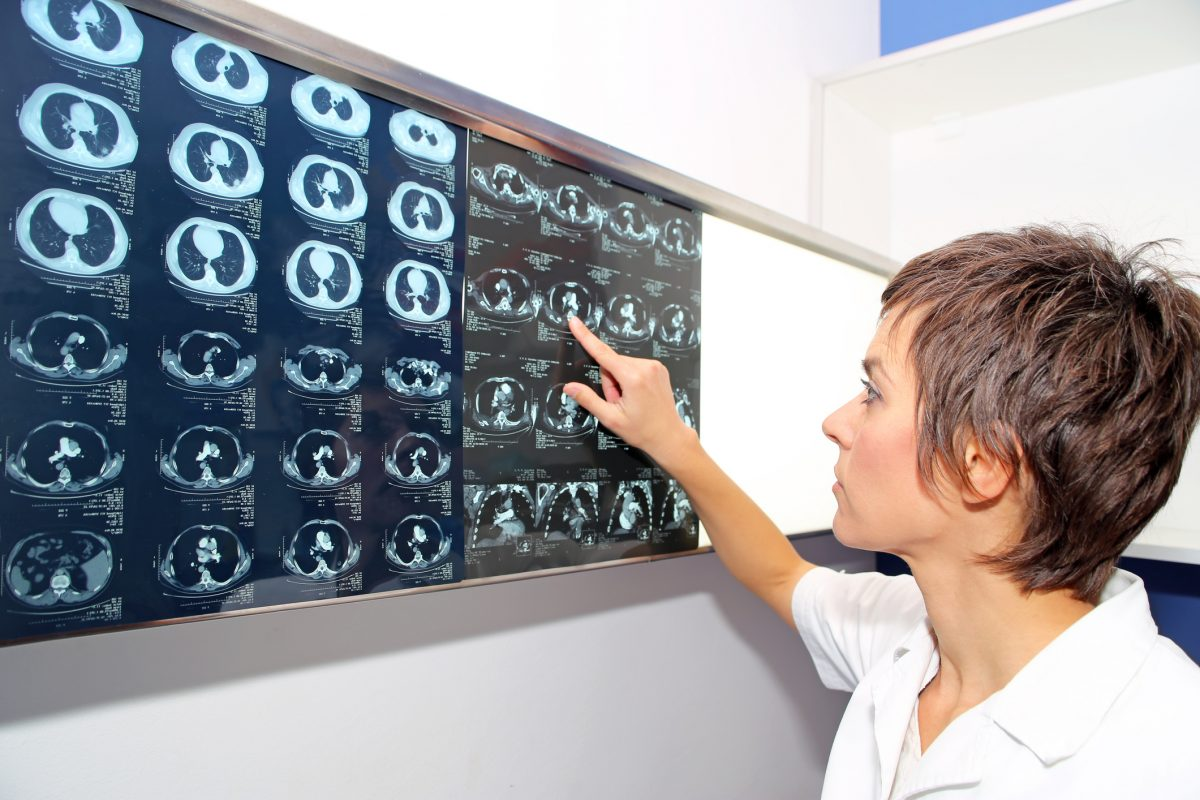 CT MRI Diagnosis