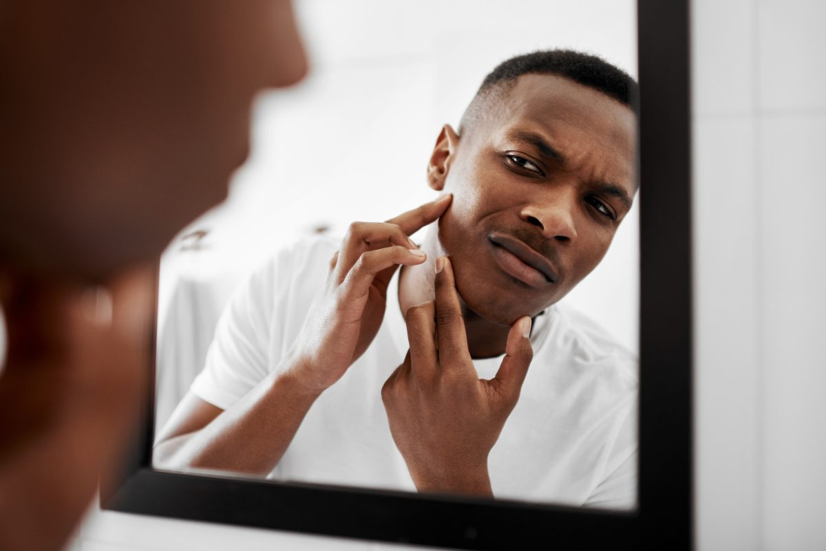 Popping pimples spreads bacteria