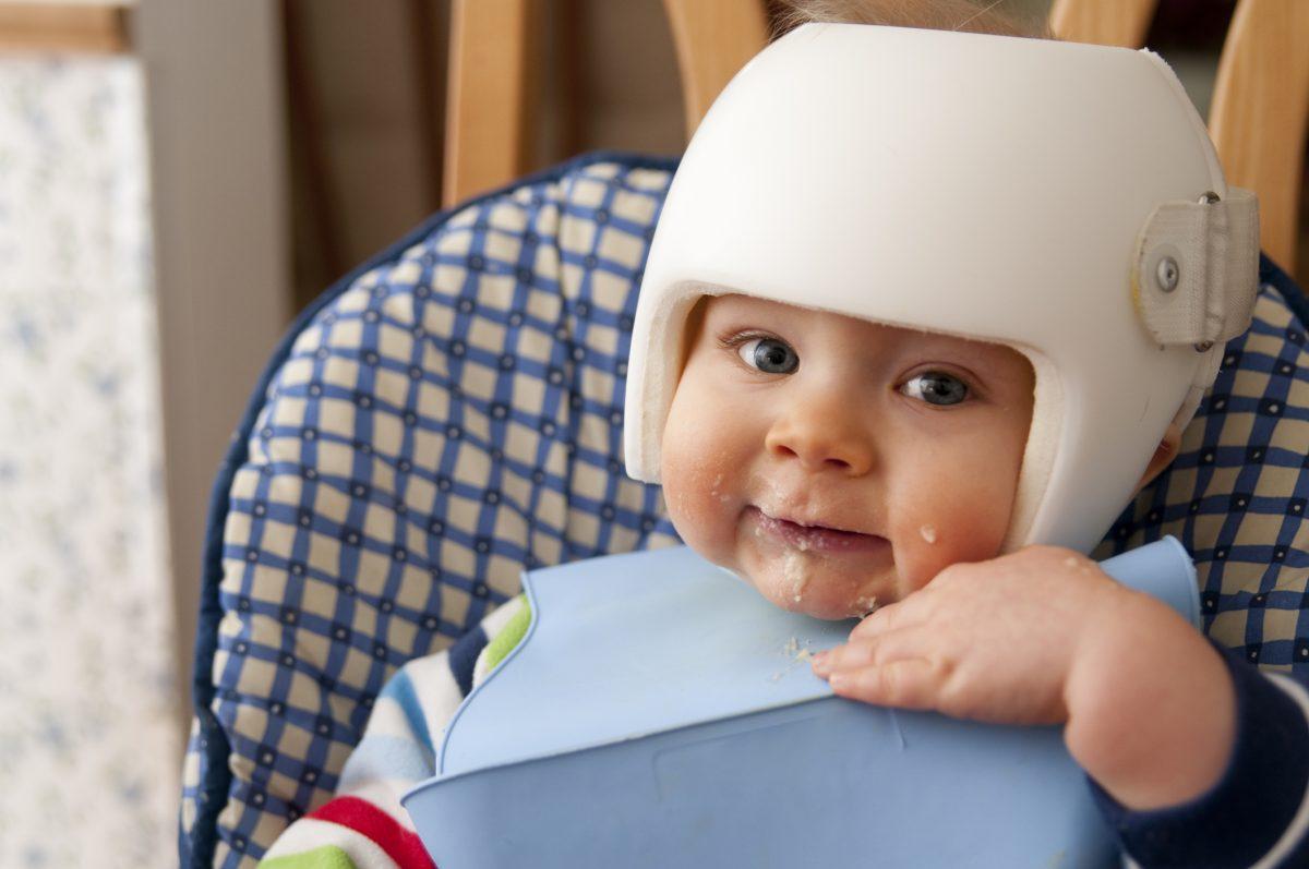 remolding helmet developmental delay