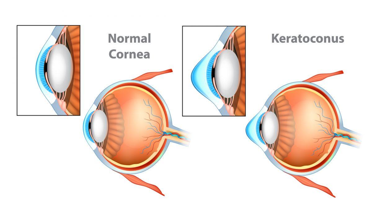 keratoconus keratocytes apoptosis chronic injury