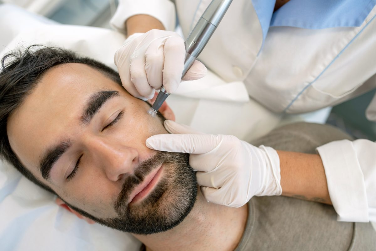 Microneedling encourages collagen production
