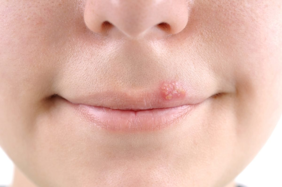 cold sore blisters on face