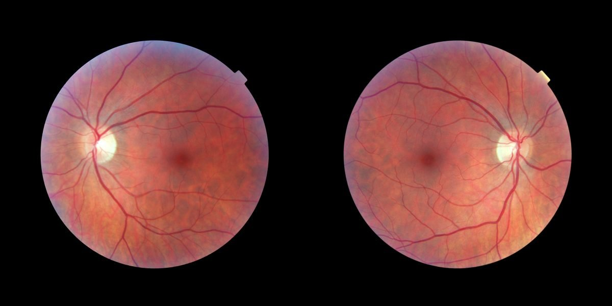 Papilledema What Is Optical Swelling