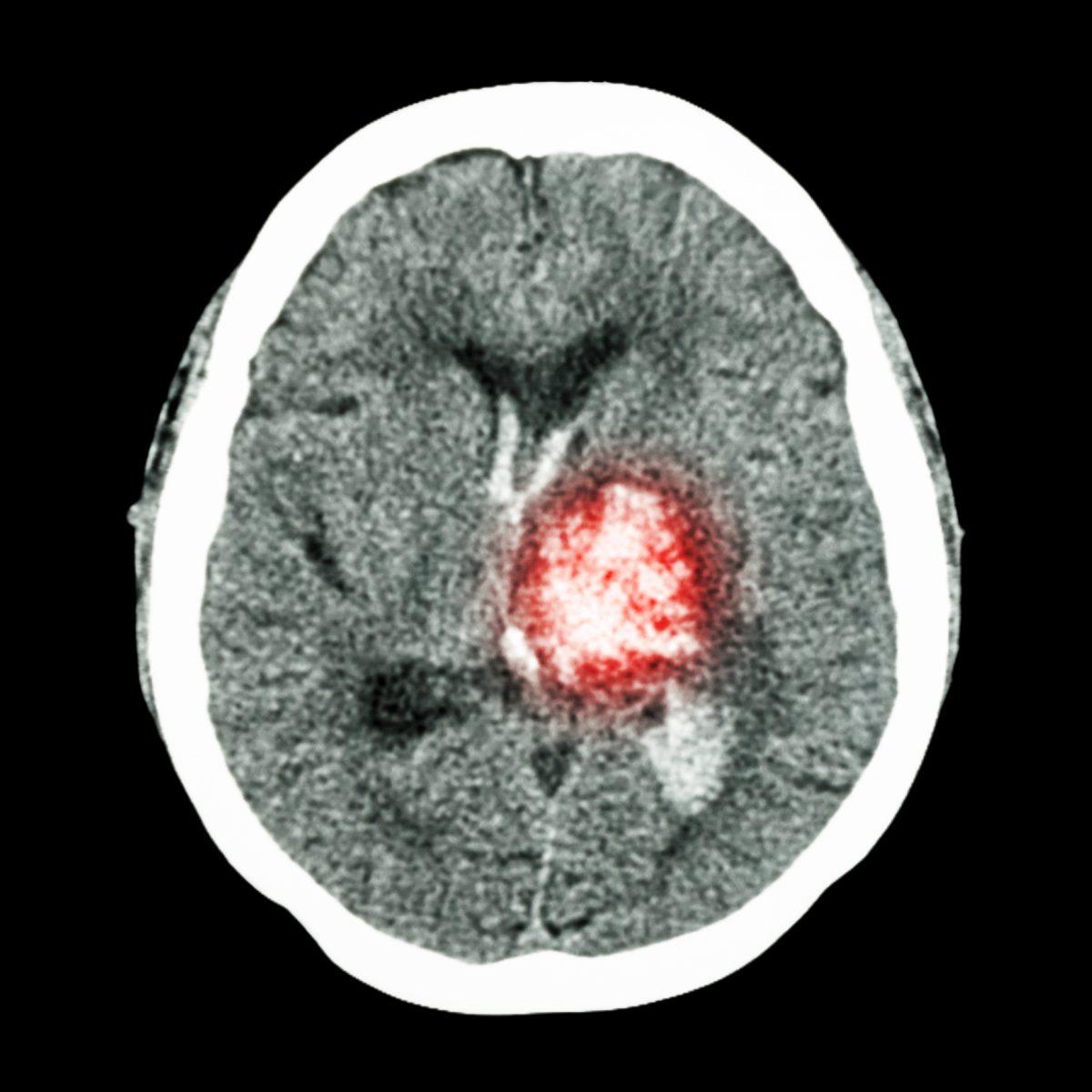thalamic hemorrhage