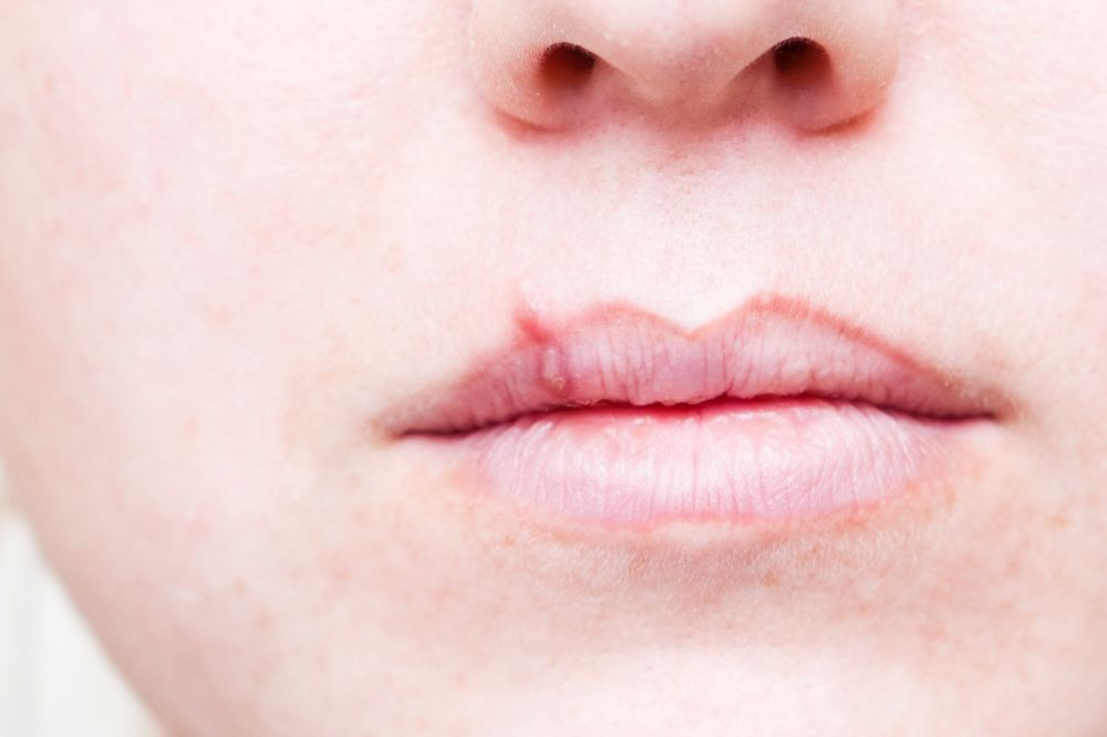 The Stages of a Cold Sore