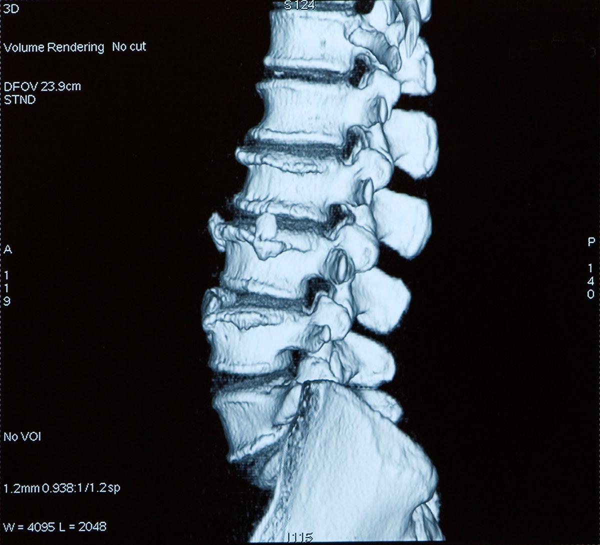 sacral pudendal nerve