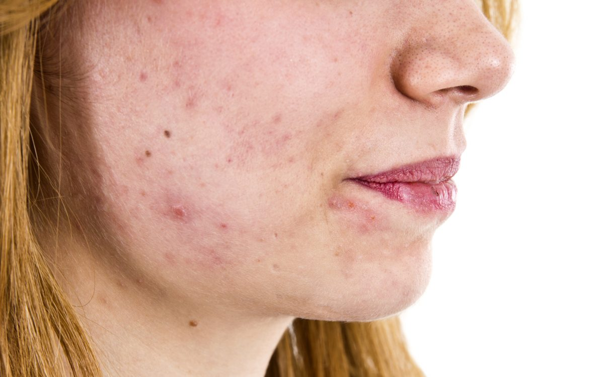 Acne Scars Dry Skin Irritation