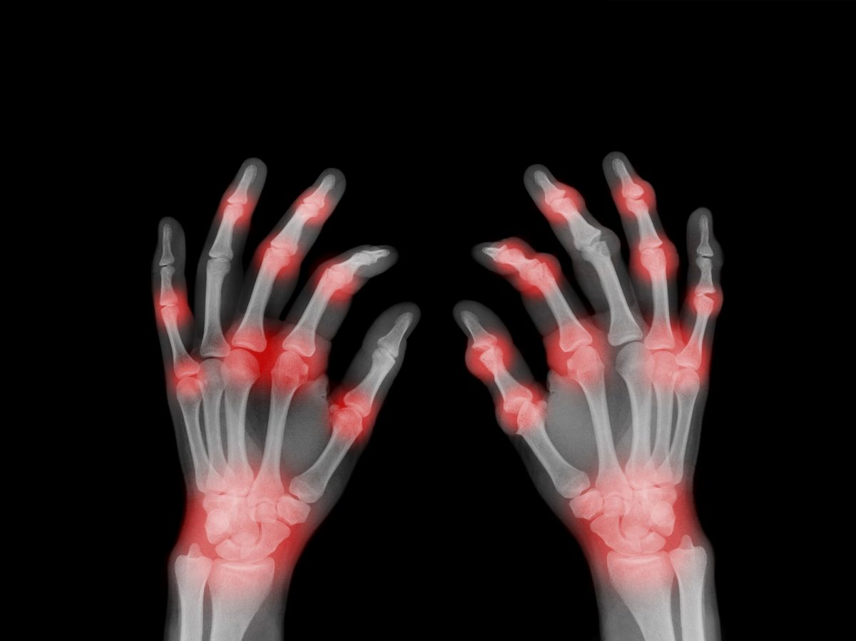 x-ray painful hands arthritis
