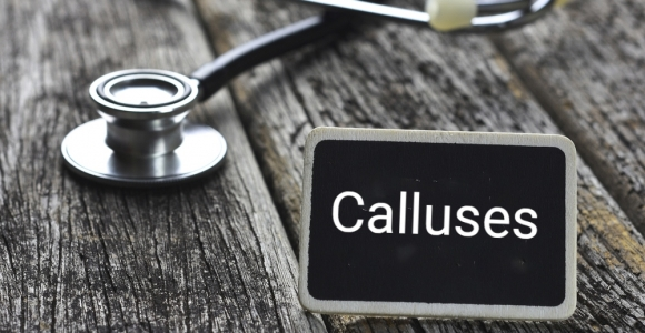 How Calluses Form and How to Treat Them