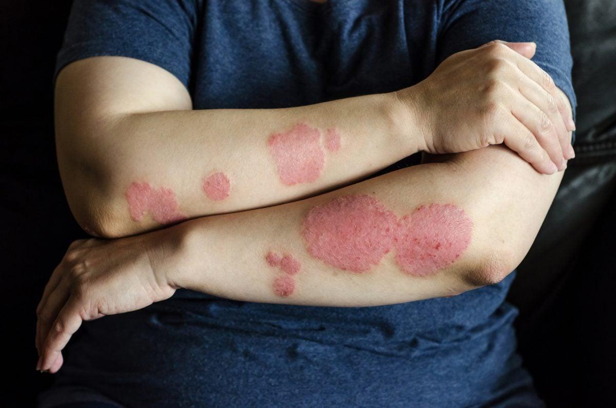 skin rash psoriasis