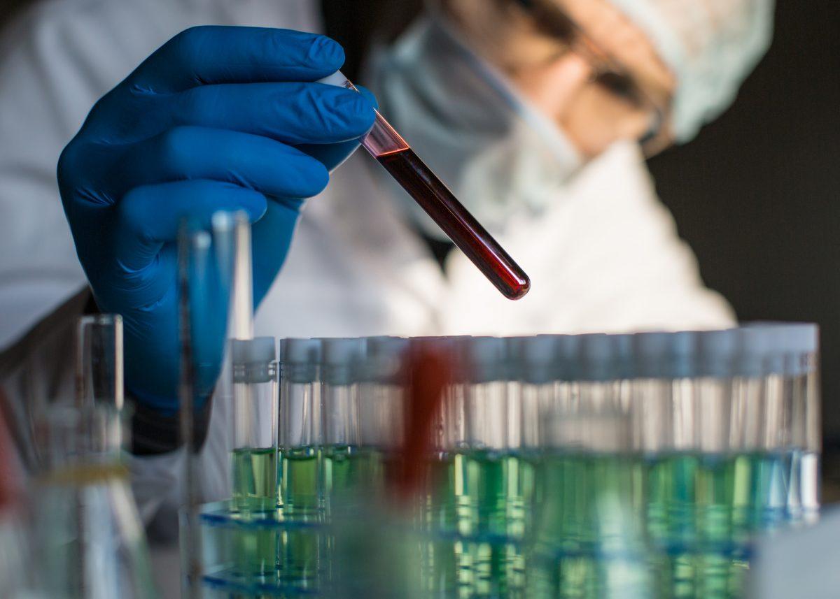 blood samples test tubes