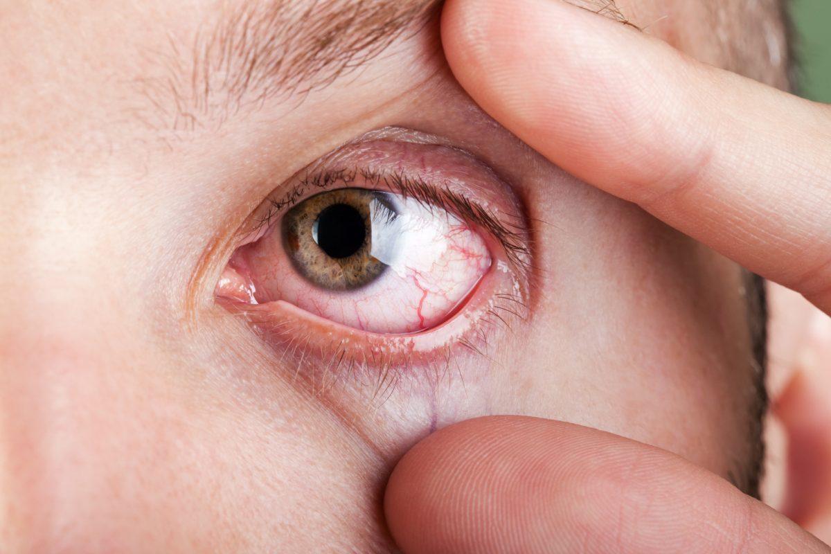 chronic dry eyes