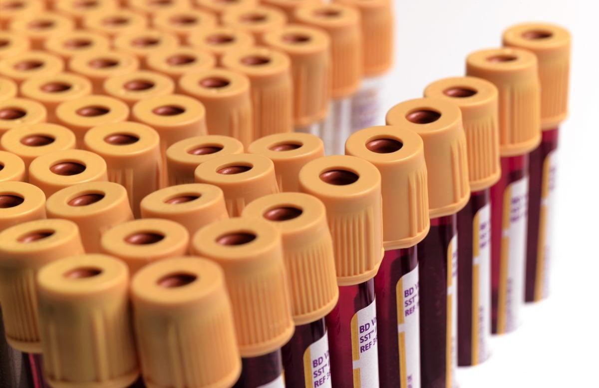 blood testing diagnosis
