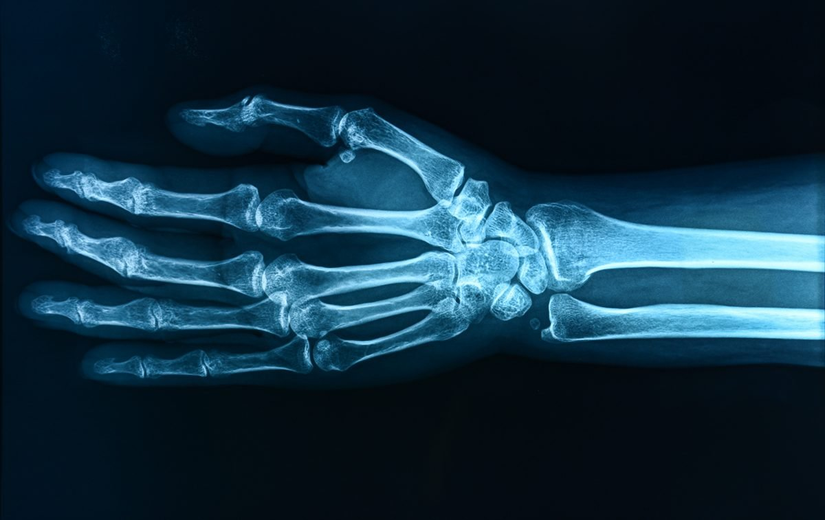 wrist x-ray imaging