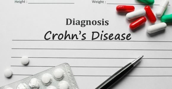 Crohn's Disease Development and Flares