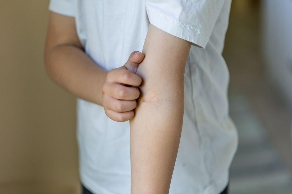 children and candida rash