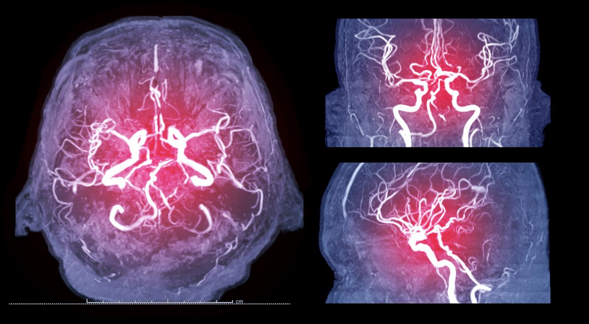 brain MRA dye