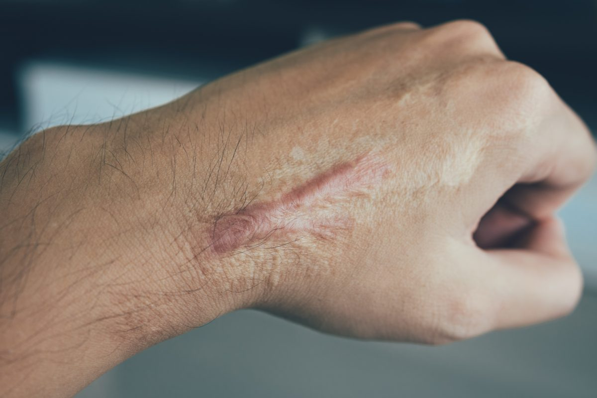 keloid scar tissue