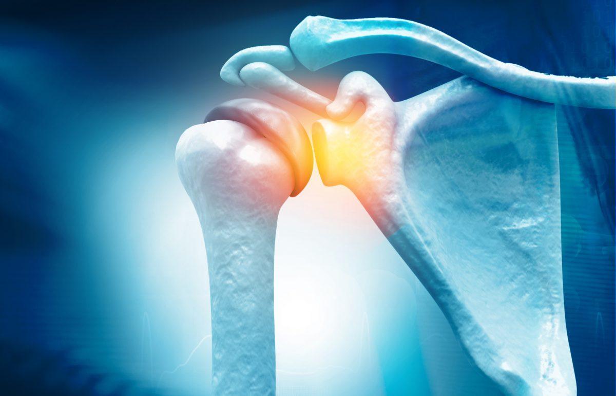 tendon tear at the shoulder