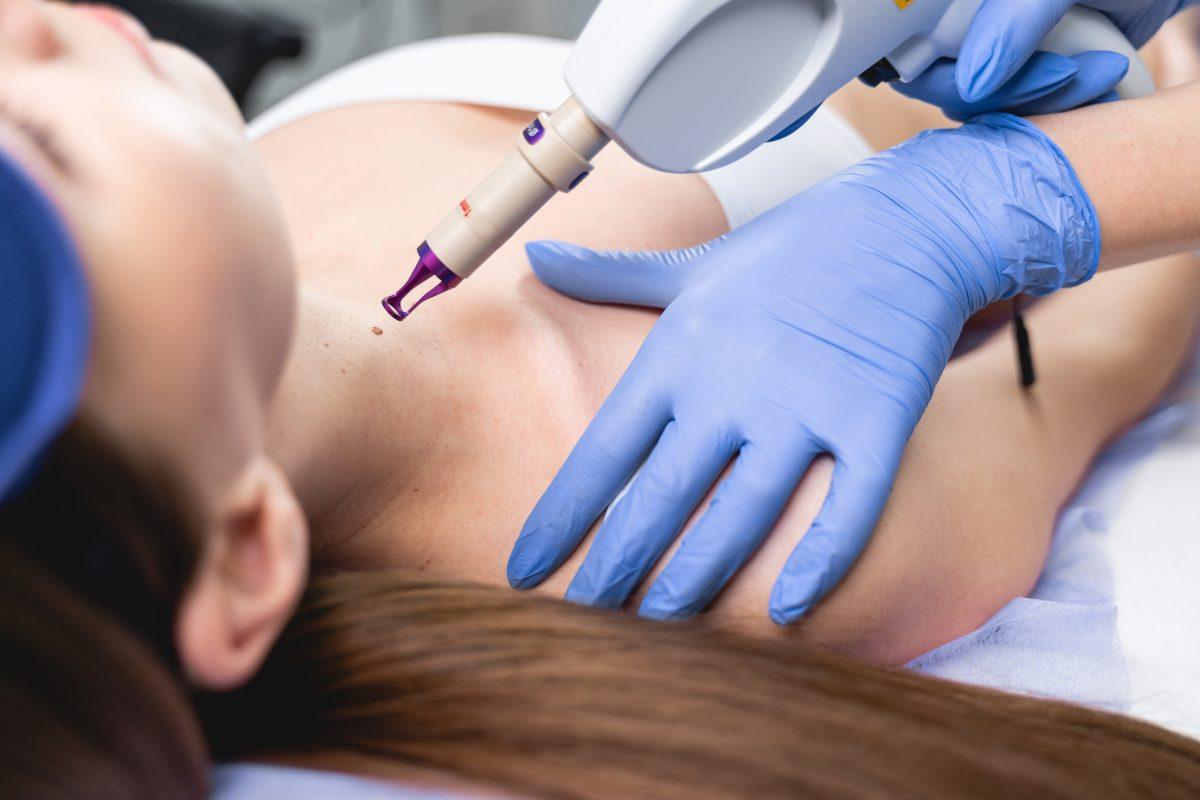 laser surgery dermatologist