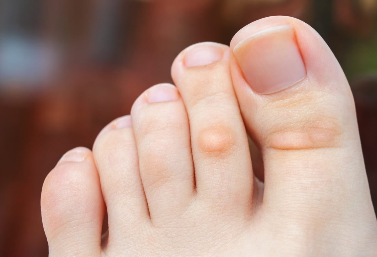 foot with a callus