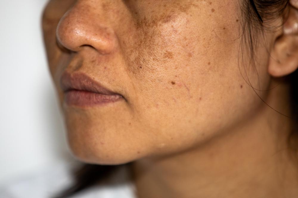 niacinamide can help hyperpigmentation