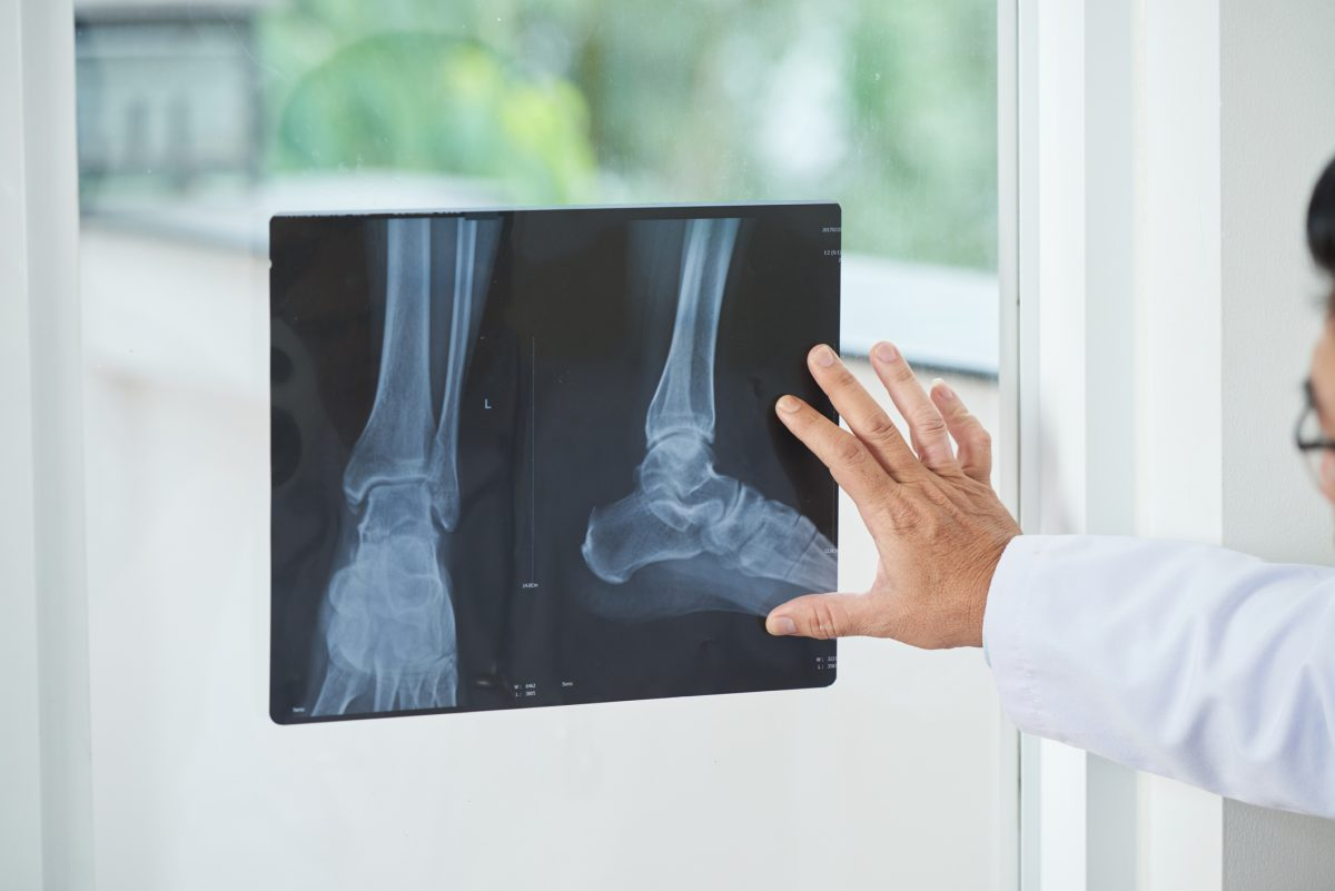 doctor observing xray image