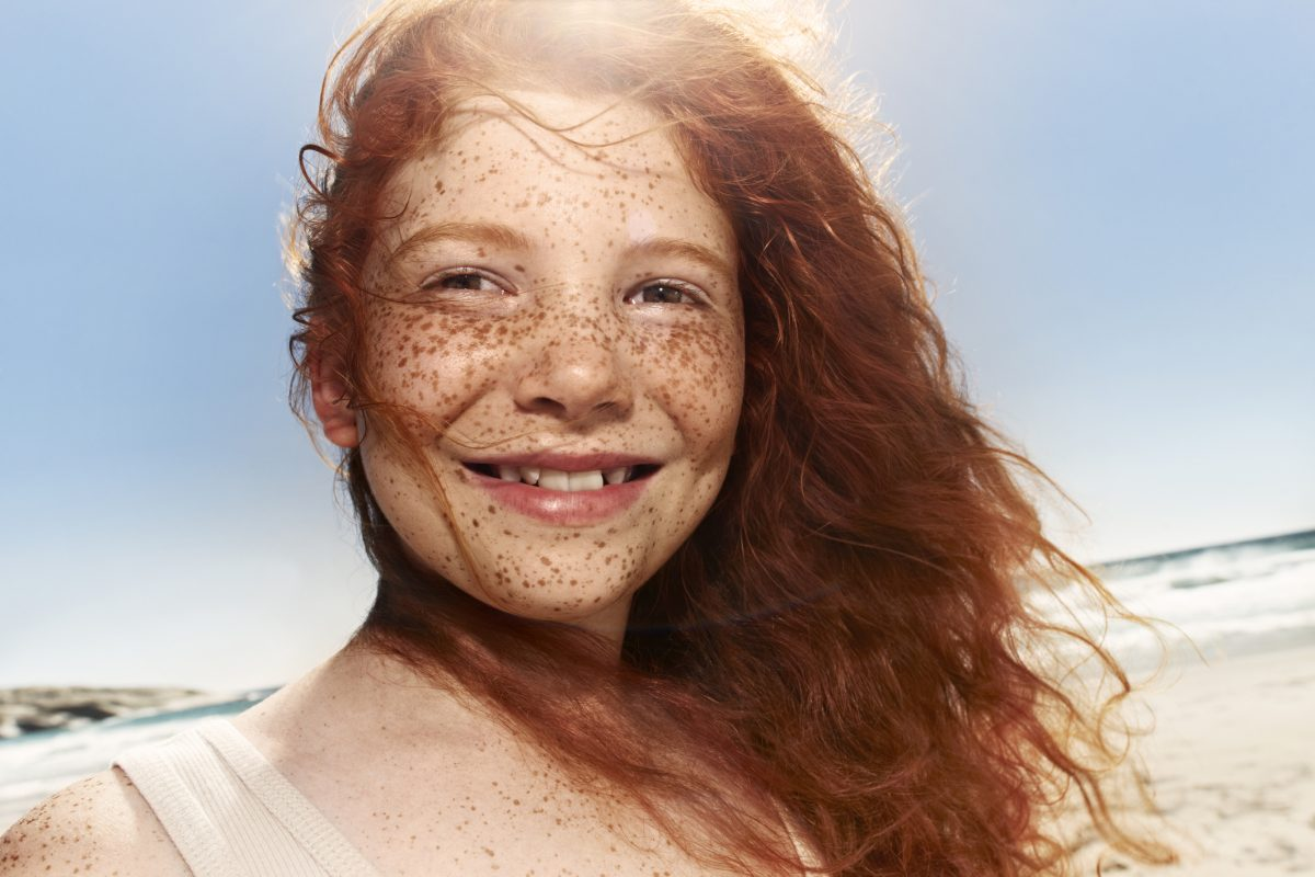 a girl with freckles in the sun