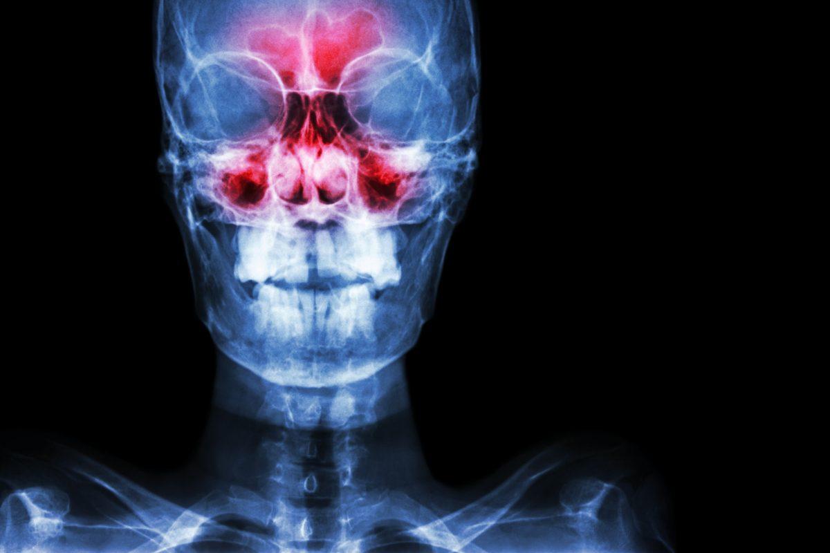 sinuses xray imaging