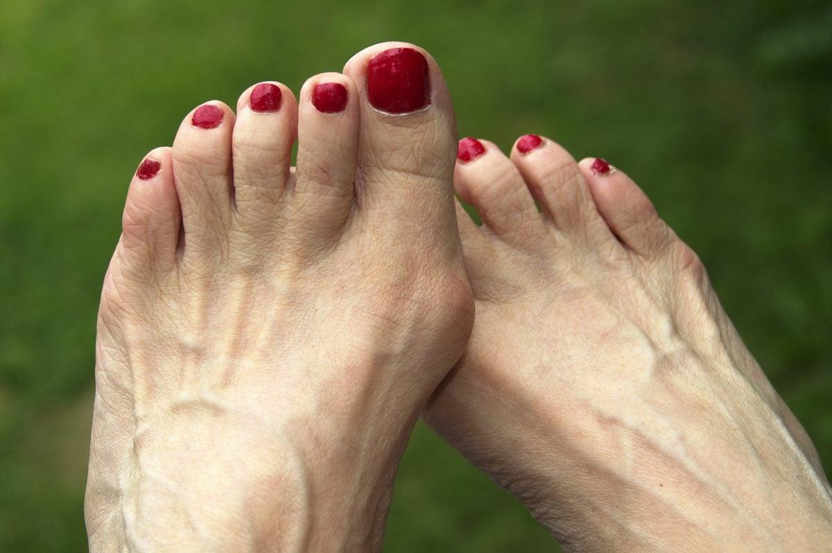 foot photo bunion