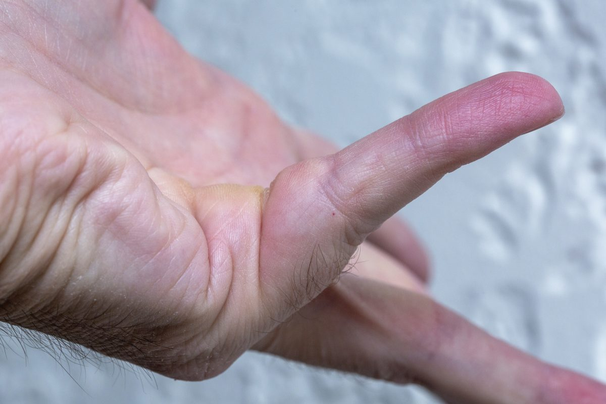 contracture types tissue