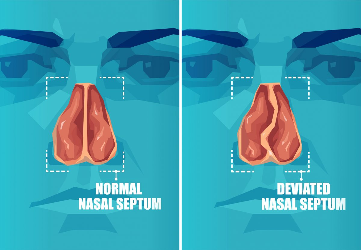 nose bleeds hematoma deviated septum
