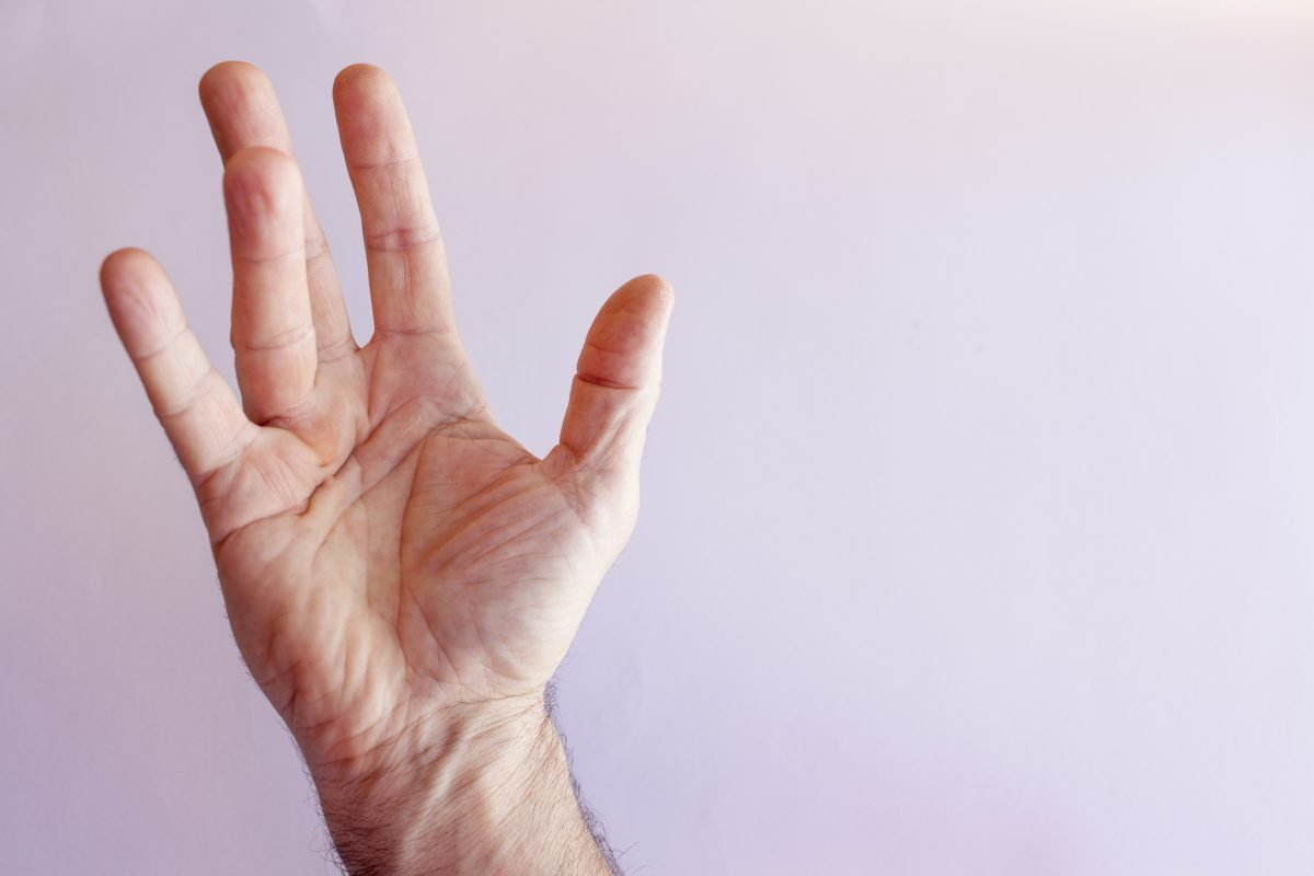 Dupuytrens Contracture Hand