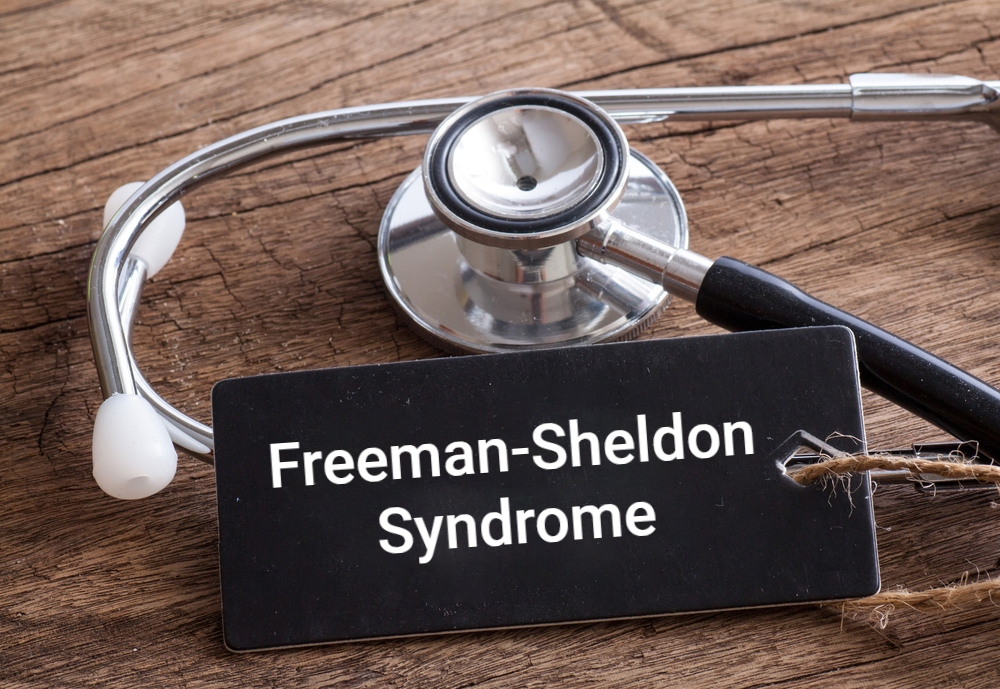 Freeman-Sheldon Syndrome contracture
