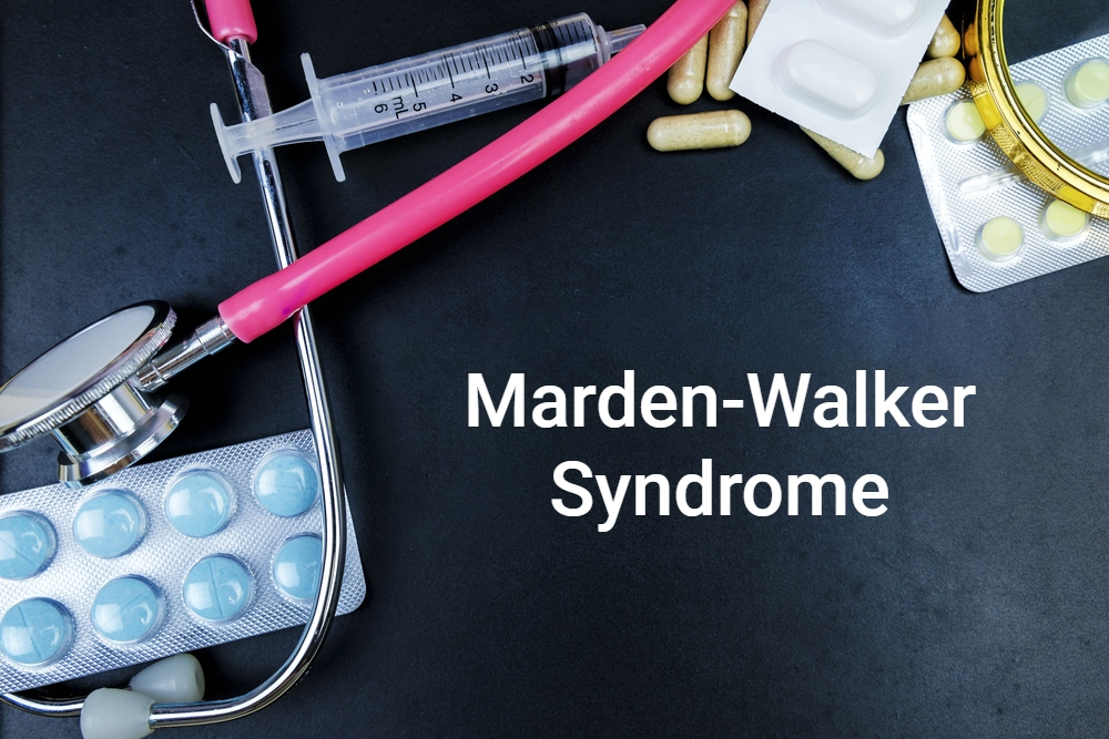 Marden-Walker Syndrome contracture