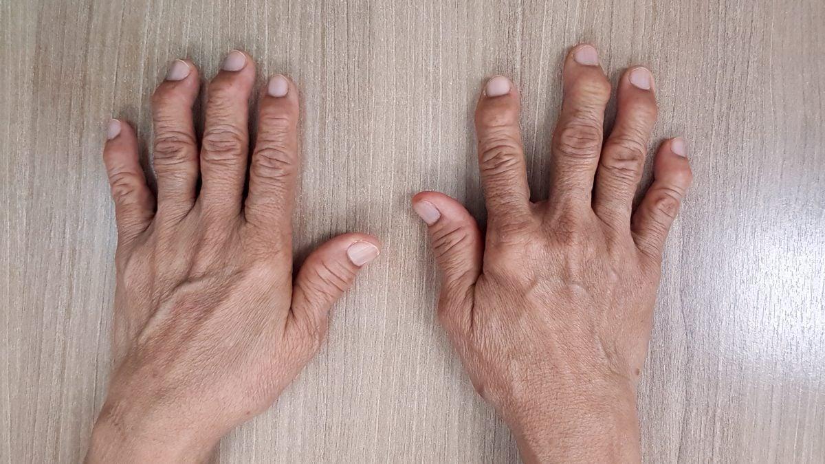 pea size node digit swelling