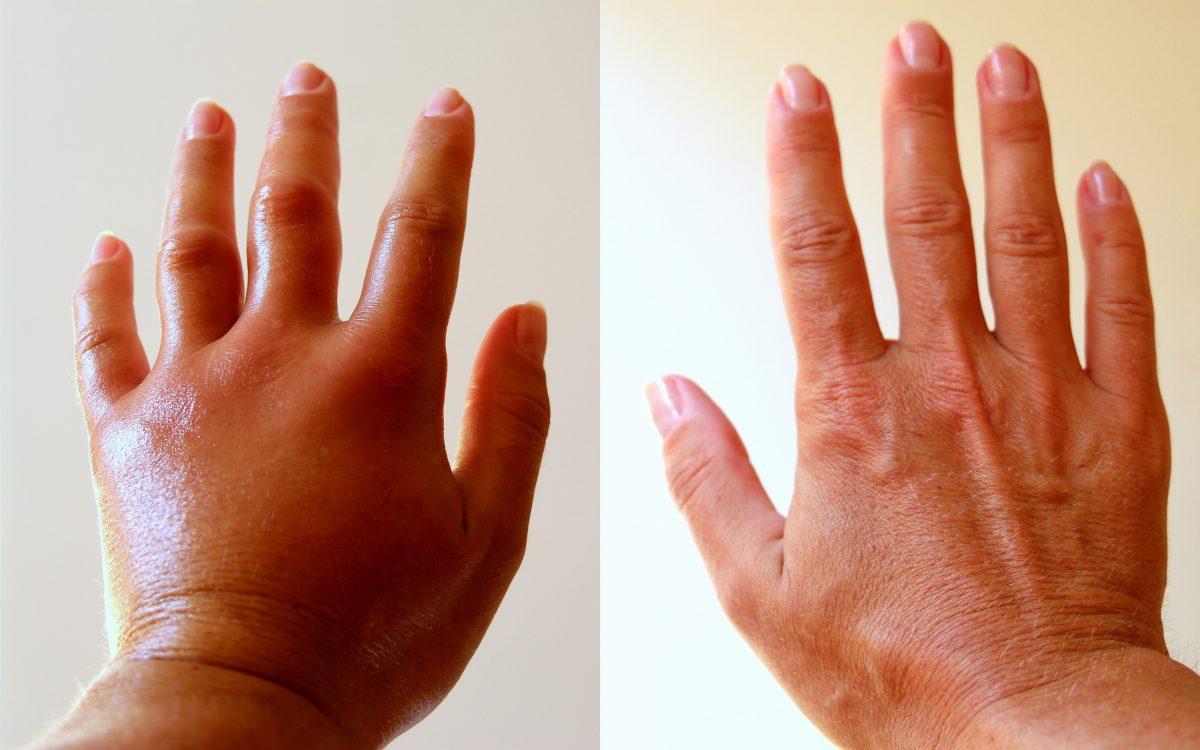 hands water retention edema diuretic