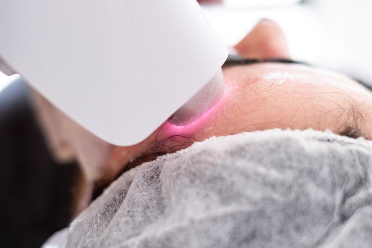 female epilation hair removal