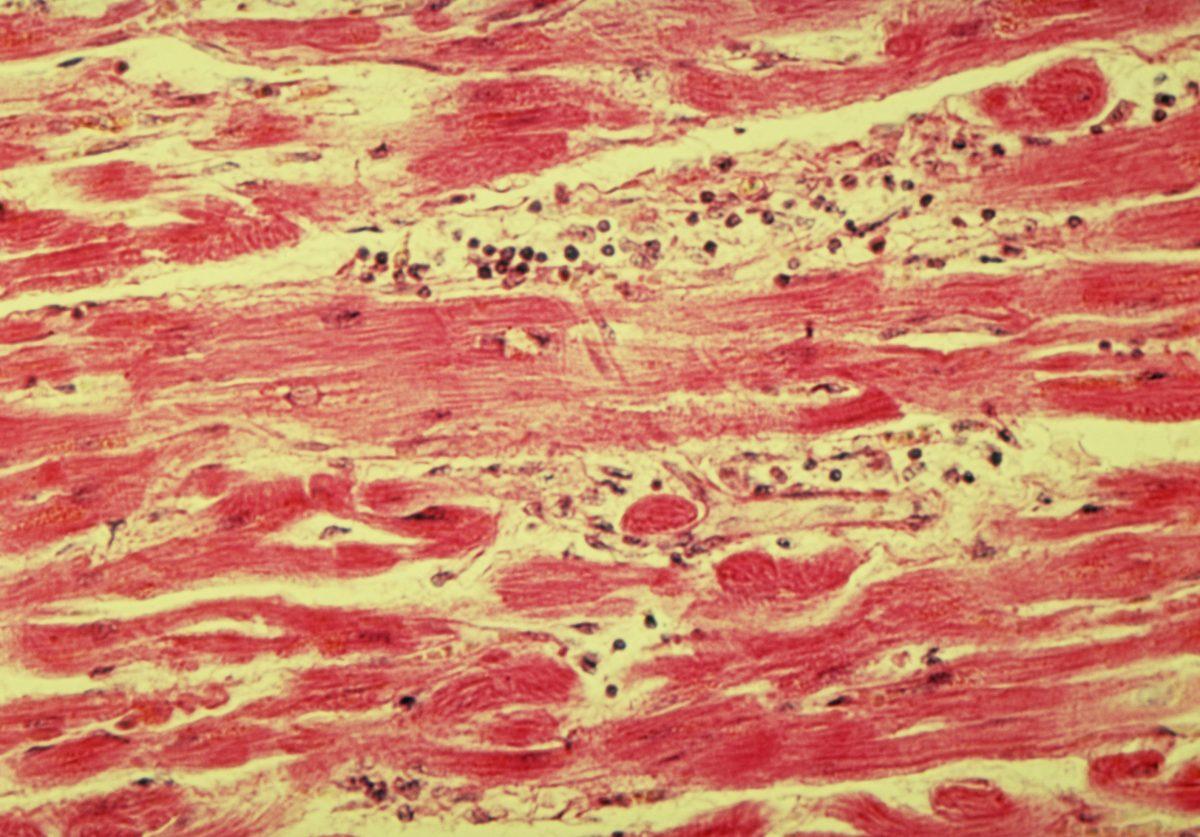 hypokalemia potassium loss diuretics