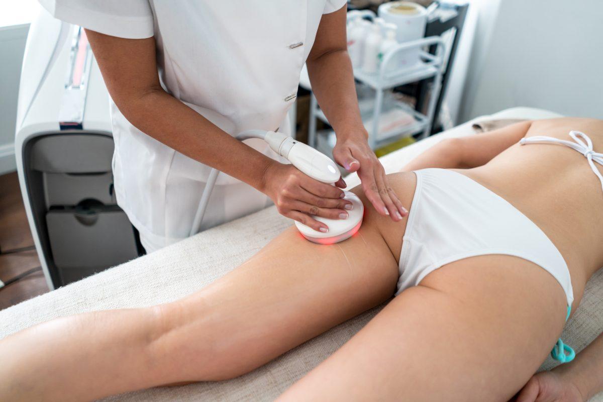 laser treatment cellulite