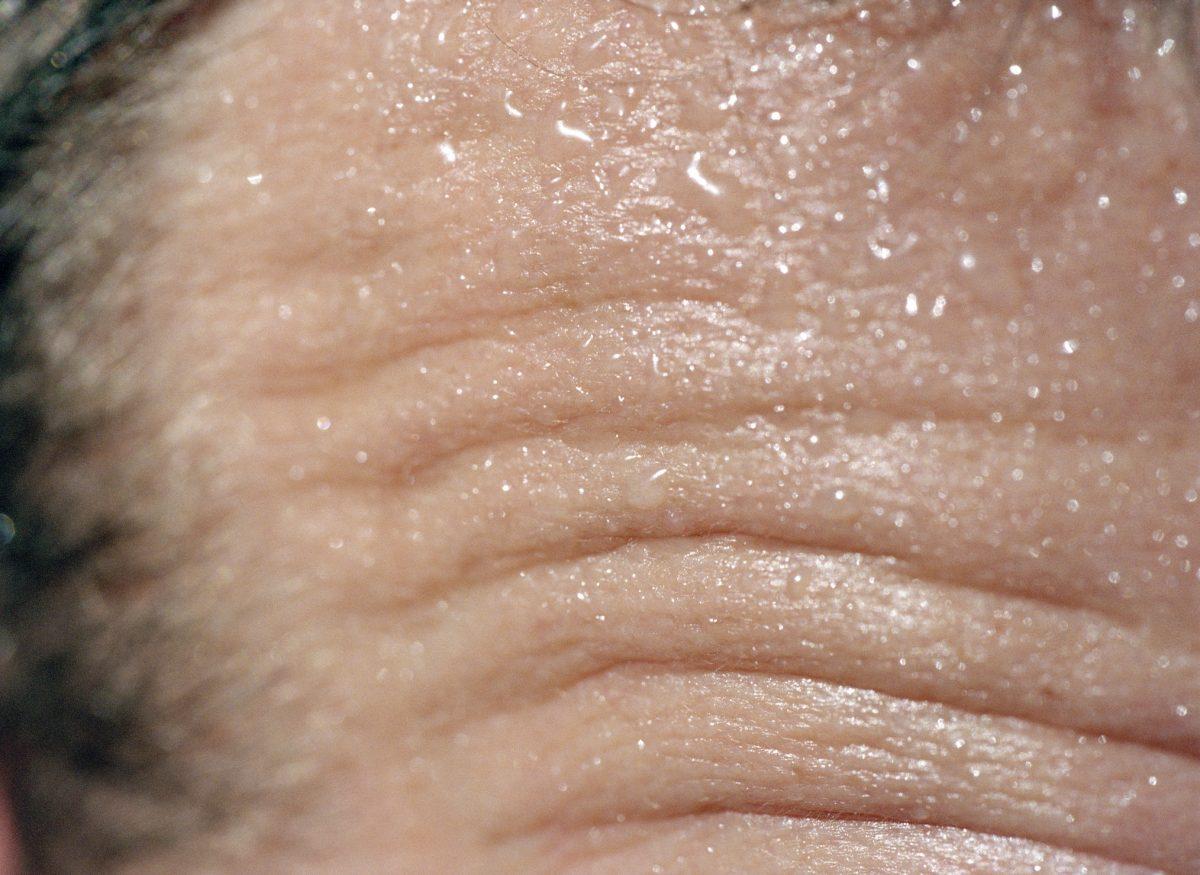sweat forehead large amounts
