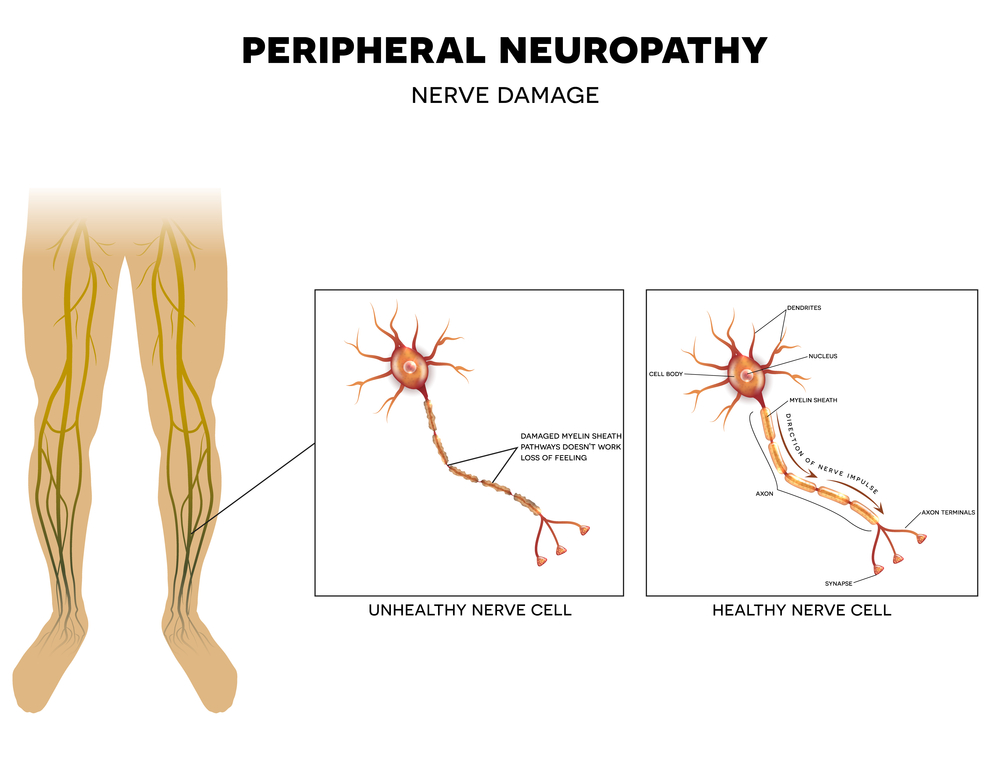 graphic showing peripheral neuropathy
