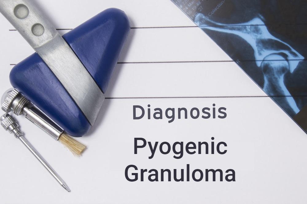 diagnosis concept for pyogenic granuloma