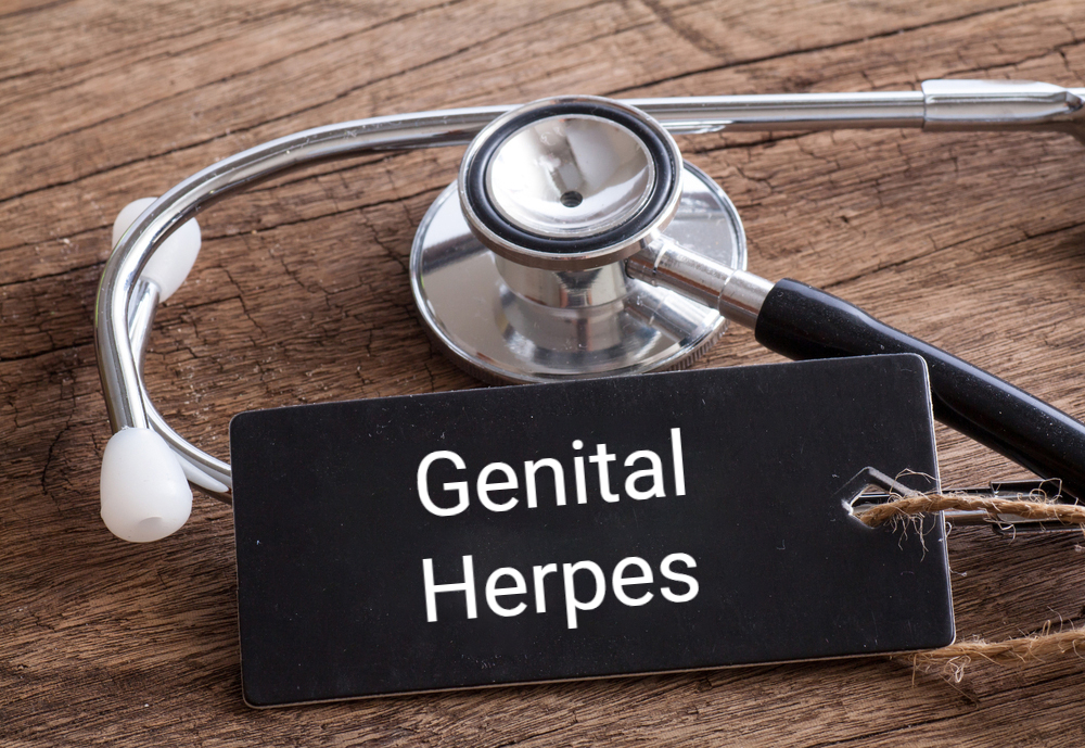 stethoscope concept: genital herpes