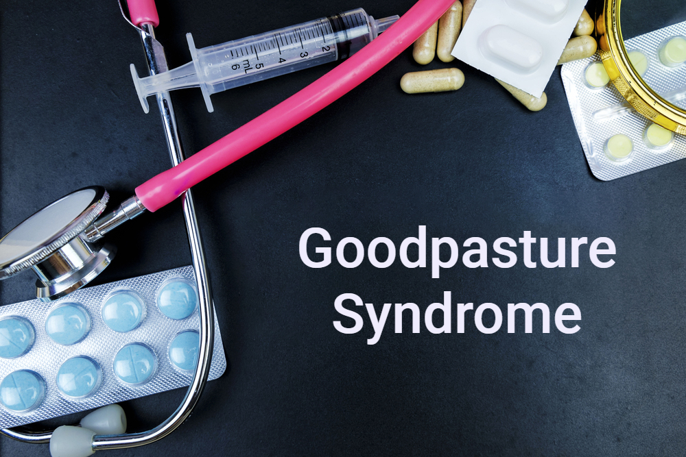 "medical concept image ""goodpasture syndrome"""