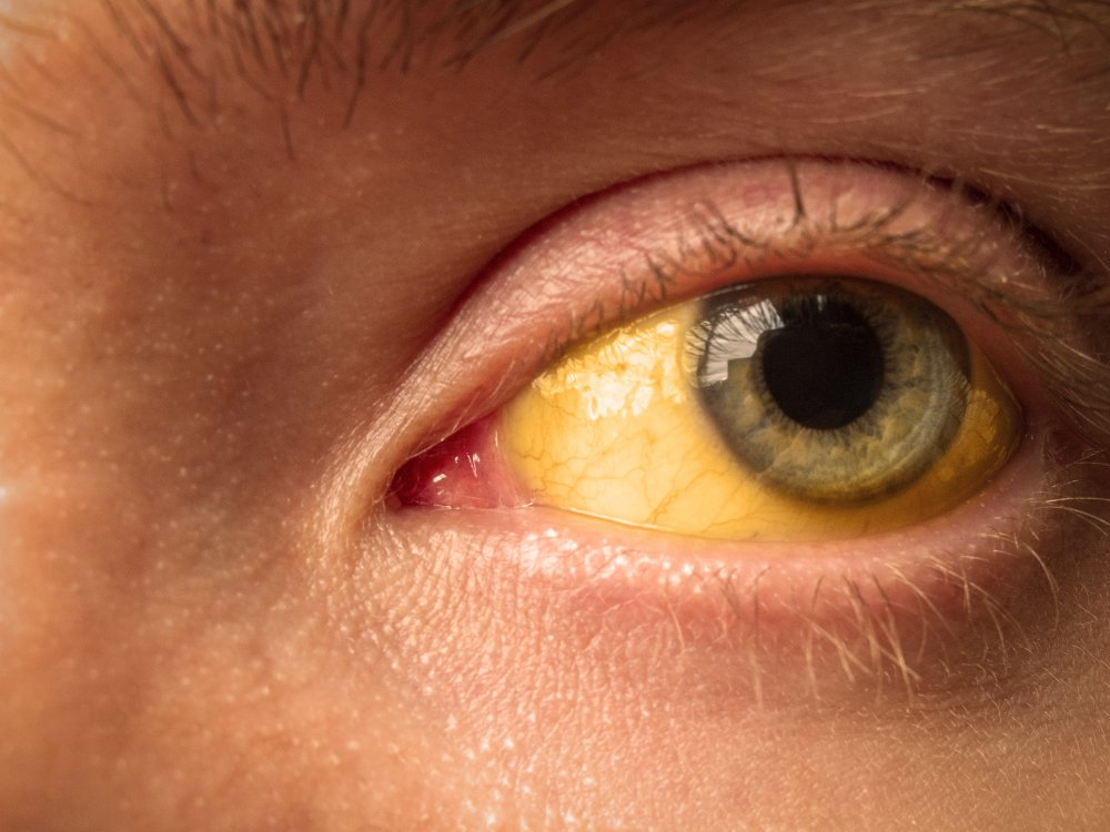 close up of a yellow or jaundiced eye