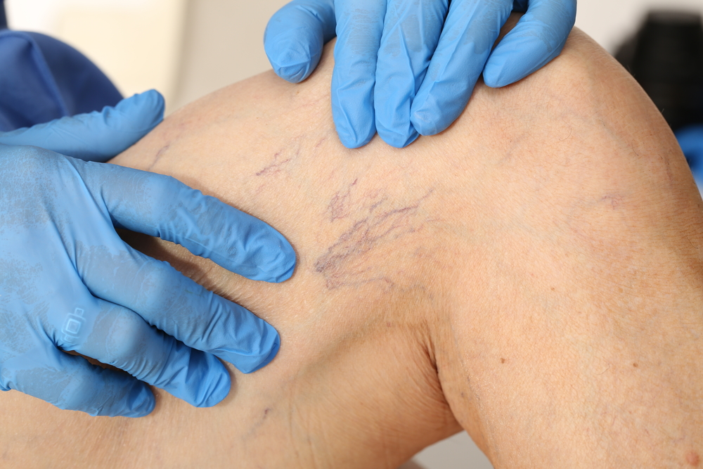 dermatologist inspecting spider veins on patient's leg
