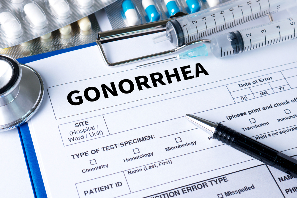 doctor chart diagnosis concept: gonorrhea
